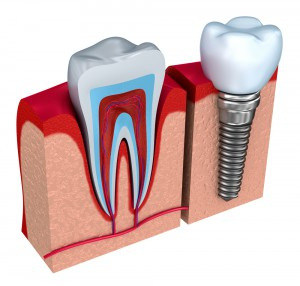 Toronto Dental Implant