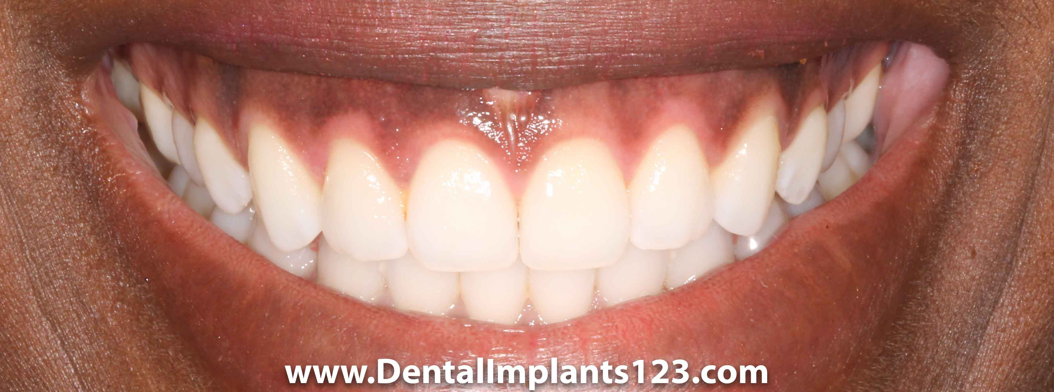 Dark Gums – Can They Be Changed? | Dental Implants