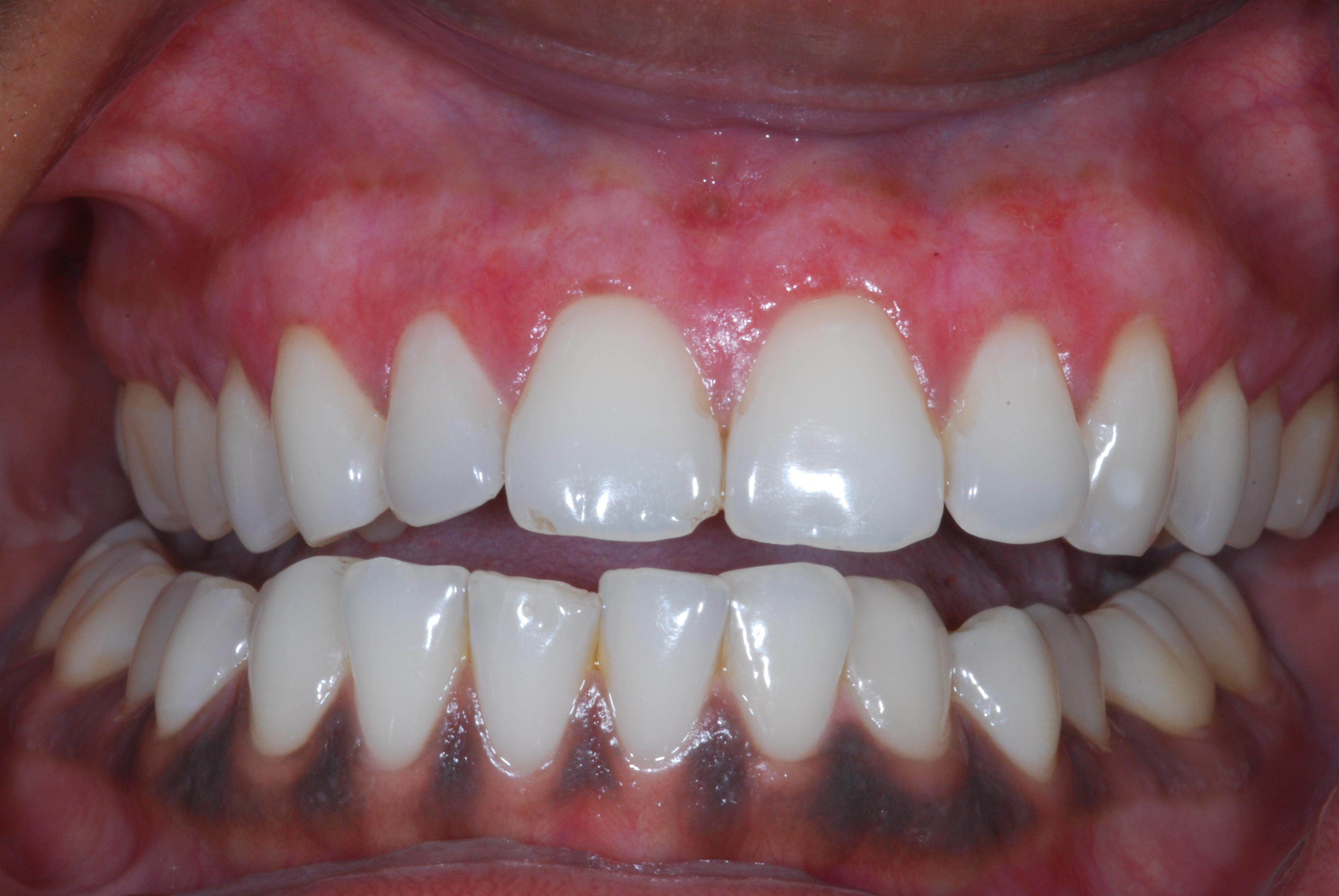 Blog Dental Implants Chrysalis Dental Centres Canada